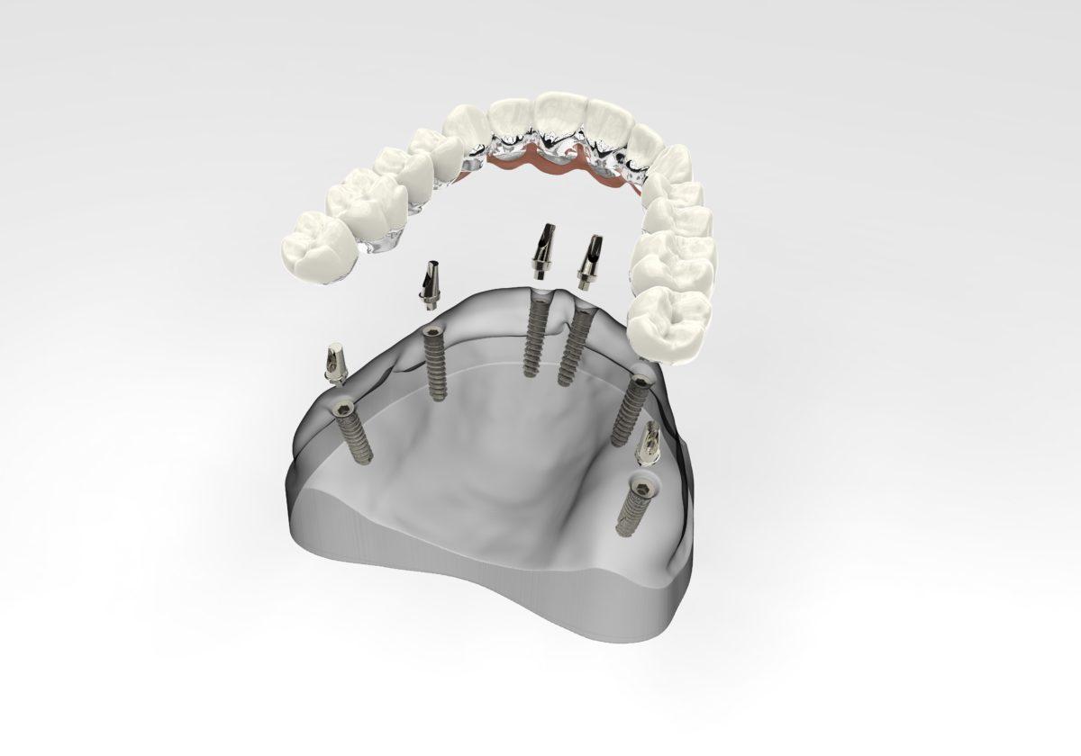 Имплантация зубов all on 6