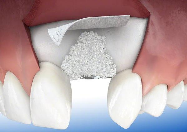 Костная пластика при имплантации зубов в Москве, костная пластика зубов цены
