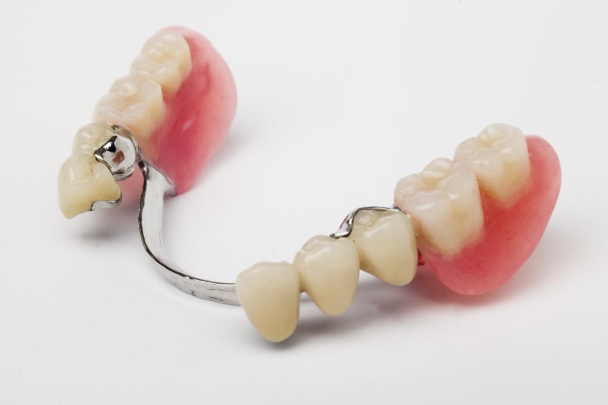 Полное протезирование зубов ROOTT (металлокерамика), современное несъемное протезирование зубов системы Рут в Москве