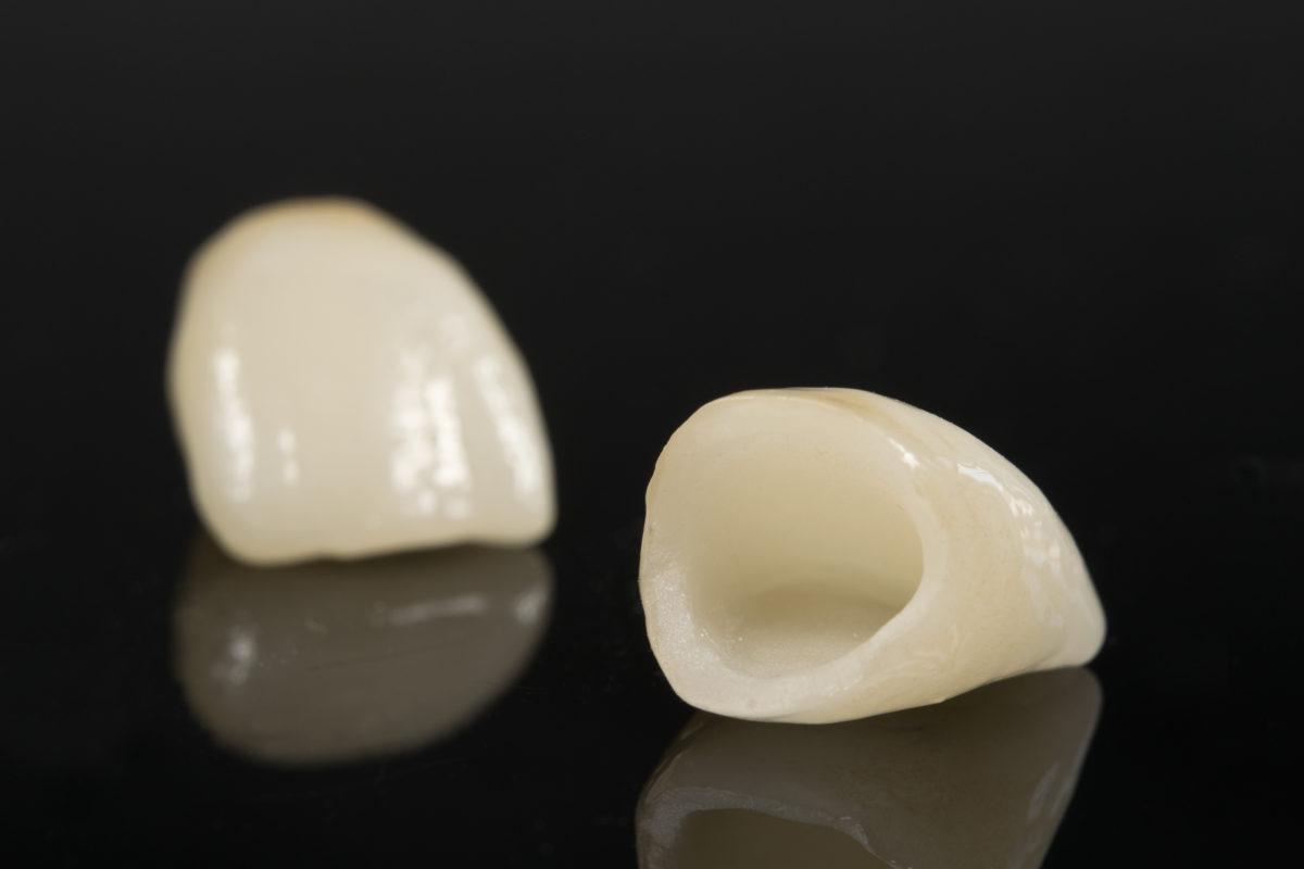Приборы для реставрации зубов
