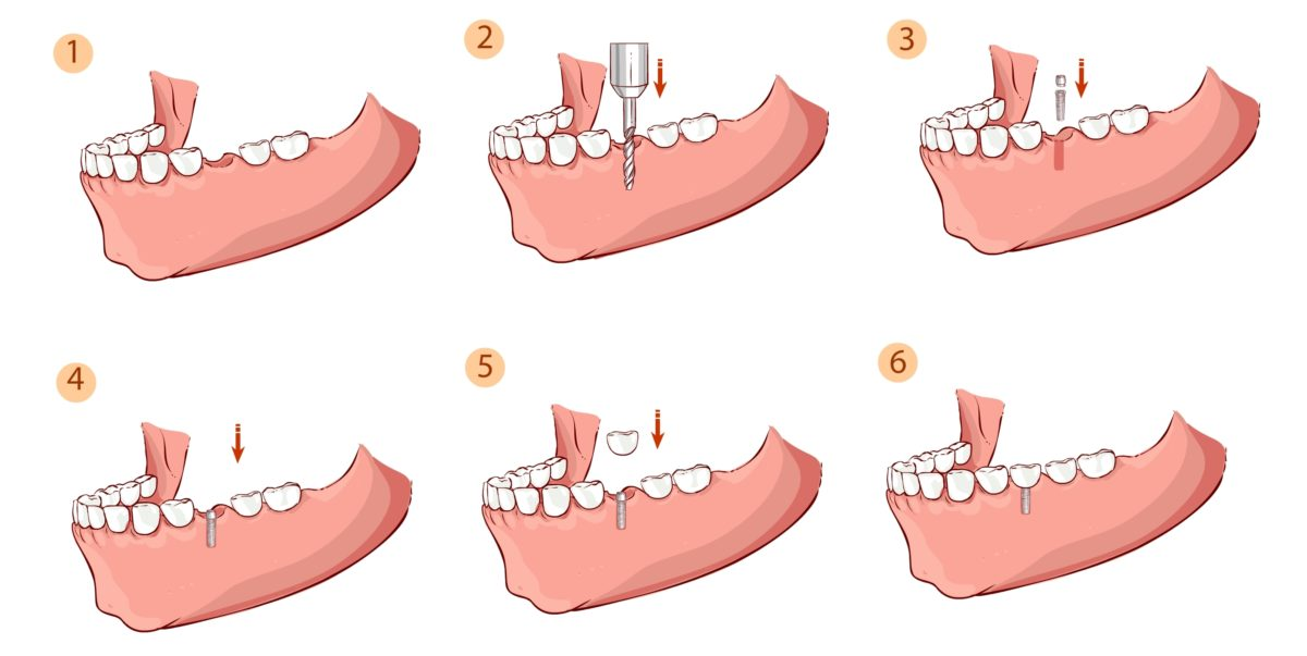 Имплантация зубов в Москве, импланты зубов