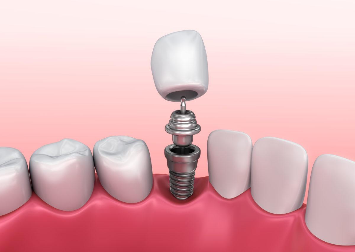 Имплантация зубов безоперационным методом