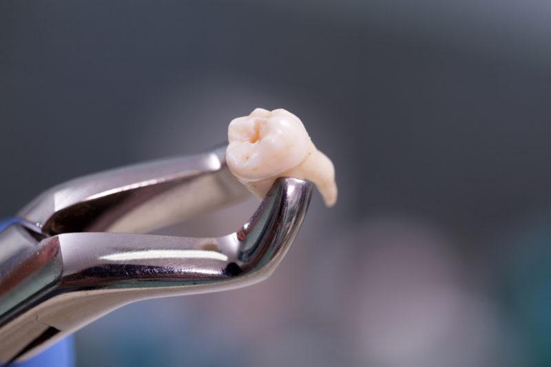 Удаление коренного зуба, цена на удаление верхних и нижних коренных зубов