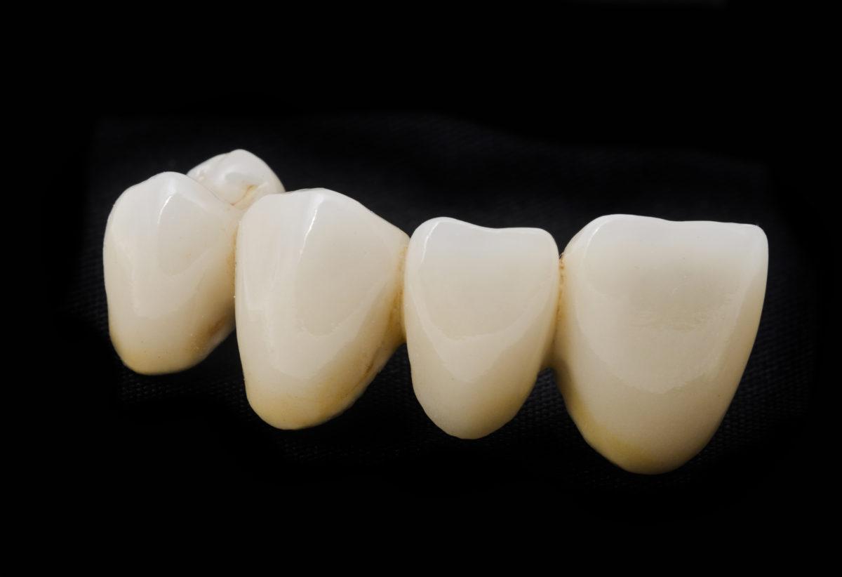 Установка мостовидных протезов на зубы