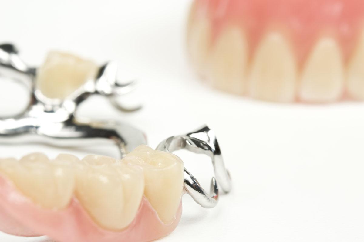 Виды протезов зубов, цены на съемные и несъемные вставные протезы